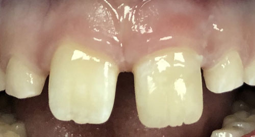 patient's spaced out teeth up close