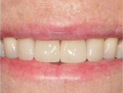 The beautiful results of a cosmetic dental procedure at Smiles for Life. These teeth are straighter and whiter than they were before.