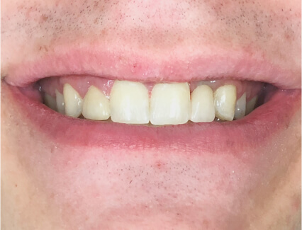 A photo of our successful cosmetic dentistry services. This photo shows a placed bonded bridge.