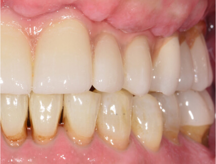 After placement of an implant supported bridge at Smiles for Life in Auburn, IN