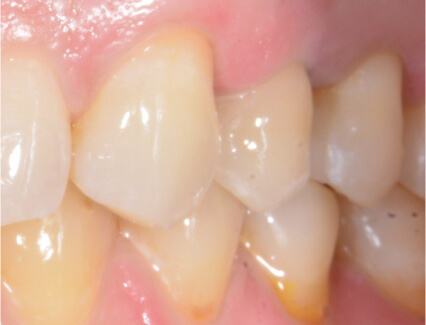 After placement of a single tooth dental implant at Smiles for Life in Auburn, IN