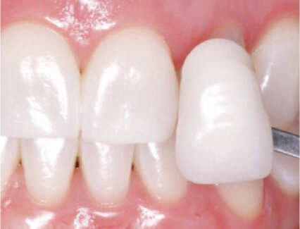 veneer being placed over a tooth