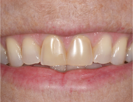 Patient's teeth before treatment