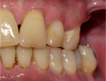 patients teeth before treatment