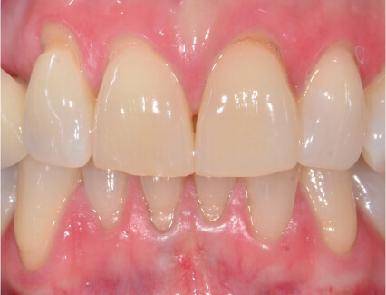 Before soft tissue grafting and bridge placement at Smiles for Life in Auburn, IN
