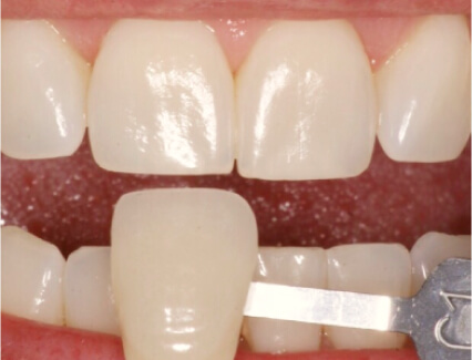 Showing the color of a patient's teeth before teeth whitening at Smiles for Life in Auburn, IN