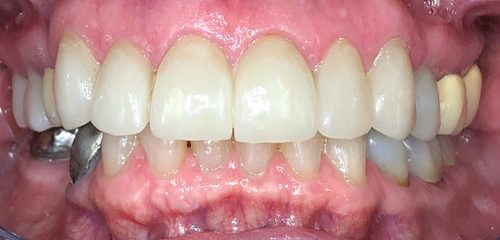 The result of one of our successful cosmetic dentistry restorations.