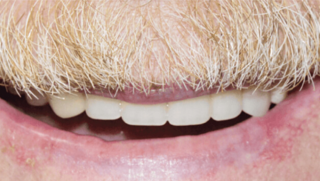 After a smile makeover by Dr. Heffelfinger at Smiles for Life in Auburn, IN