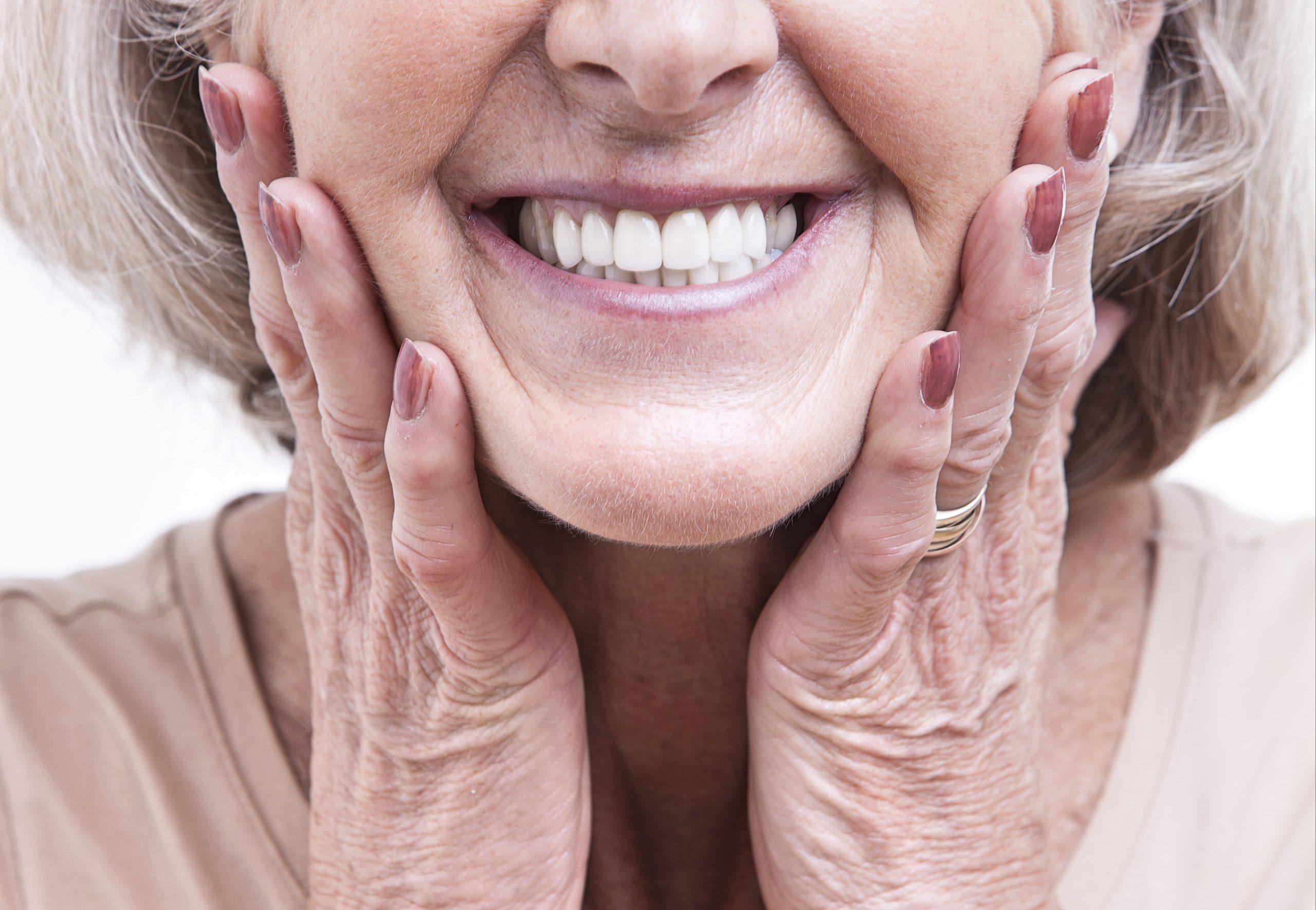 A woman shows off her bright white dental bridges.