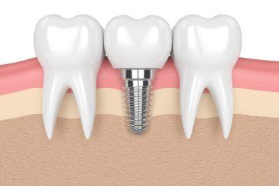 mock up picture of dental implants